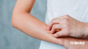 Атопик дерматиттай өвчтөнүүдэд Астмаар өвчлөх эрсдэл өндөр